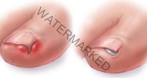 Извадете врастналия нокът без да посещавате хирург