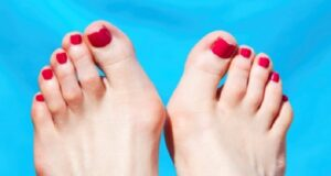 Имате ли подобен проблем на крака си? Ето как да се избавите!