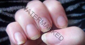 Проблемите с тези жлези водят до чупливи нокти!