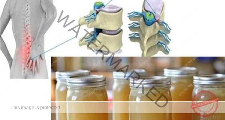 Лечение на болките в ставите и гърба