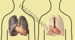 4 продукта, които пречистват белите ви дробове
