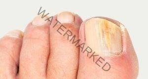 Без повече гъбички по вашите нокти, ако направите това!