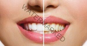Бели зъби само за 4 минути! Вижте как да го постигнете!