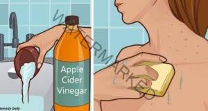 Кожните проблеми ще изчезнат, след като използвате ябълков оцет!