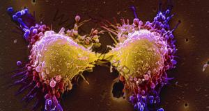 Преборете рака незабавно, като ядете тези 7 продукта!