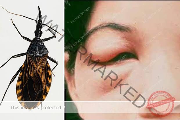 Убийте веднага това насекомо ако го забележите в дома си!
