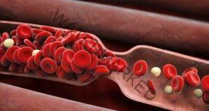 8 признака, че може да имате кръвен съсирек. Прочетете веднага!