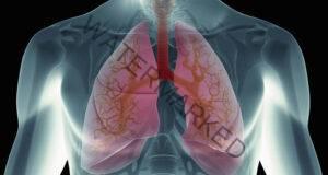 Домашен лек с локум за изхвърляне на секретите от белите дробове