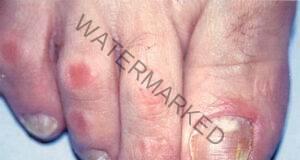 Премахнете гъбичките по краката и ръцете! Незабавни резултати!
