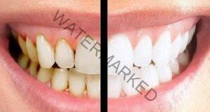Избелване на зъбите с куркума: Ще опитате ли?