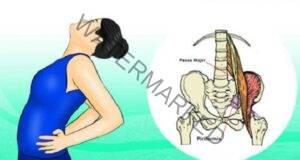 Упражнения за облекчаване на болка при ишиас