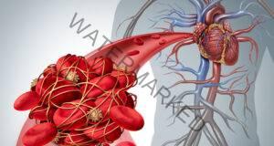 Кръвен съсирек: 6 признака, че може да сте в опасност!