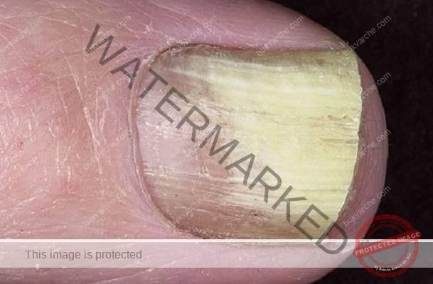 Отървете се от гъбичките по ноктите бързо и лесно!