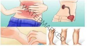 Здрави ли са вашите бъбреци? Проверете тези 10 признака!