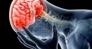 5 тревожни сигнала за инсулт, които трябва да знаете!