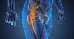 Облекчете болката в седалищния нерв с този 10-минутен метод