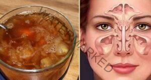 Отпушване на носа с този ефикасен народен лек!
