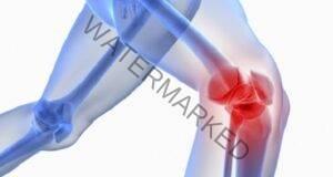 6 съставки срещу болка в коляното! Обърнете им внимание!