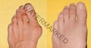 Как да излекувате изпъкналите кокалчета на крака у дома?