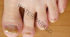 Преборете гъбичките по ноктите с домашни средства!