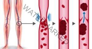 Дълбока венозна тромбоза: причини, симптоми, лечение