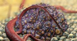 Ракът може да бъде преодолян с помощта на тези 5 продукта!