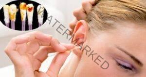Ушната кал разкрива всичко за вашето здраве! Обърнете внимание!