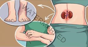 7 признака, че бъбреците ви не са здрави!