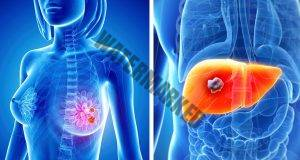 Ето тези симптоми на рак се появяват преди самото заболяване!
