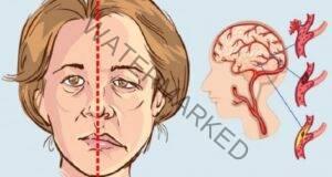 Как да разпознаем първите признаци на инсулт?