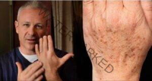 Отстранете пигментните петна по кожата с това средство