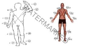 Ефикасен метод за лечение на високо кръвно налягане с йод