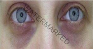 Очите предупреждават за риска от инсулт и редица други заболявания