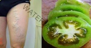 Разширените вени ще изчезнат с помощта на зелени домати и оцет!