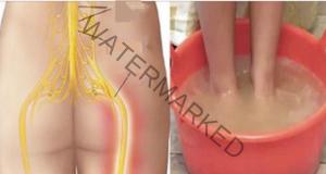 Болката в седалищния нерв може да бъде облекчена за 10 минути!