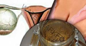 Гинекологът ми откри кисти: Изчезнаха за 4 дни с тази напитка