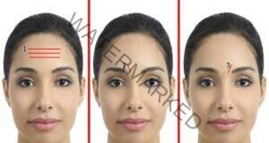 Връзката между бръчките на лицето и вътрешните органи