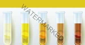 Какво казва цветът на урината за вашето здраве?