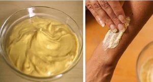 Крем с куркума помага да излекувате раните и драскотините