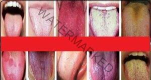 Погледнете езика си и вижте какво означава неговия цвят!