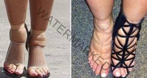 Ако имате подути крака, си помогнете с тези доказани средства!