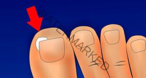 Врязан нокът: Ето как да се отървете без операция