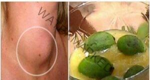 Ето как да излекувате щитовидната жлеза само с една съставка