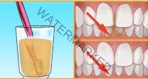Ето как зъбният камък никога повече няма да ви притеснява отново!