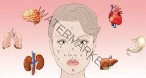 """Китайците и тяхната """"карта на лицето"""", която показва заболявания"""