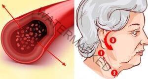 Намалете кръвното налягане с помощта на акупресура