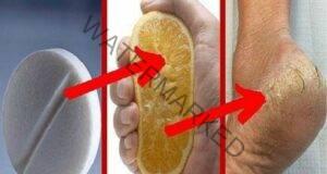 Това средство премахва гъбичките на краката за 2 дни