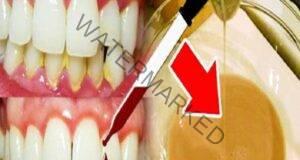 3 капки от това премахват кариеса и лекуват зъбите едновременно