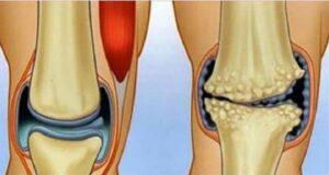 Болката в коляното ще изчезне с помощта на тези средства!