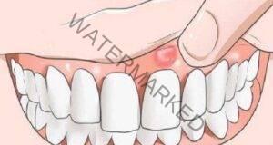 Възпаление на венците. Как да го премахнем в домашни условия?